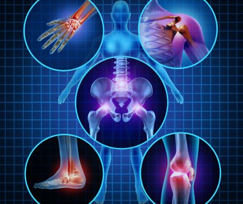 12 Οκτωβρίου: Παγκόσμια Ημέρα Αρθρίτιδας